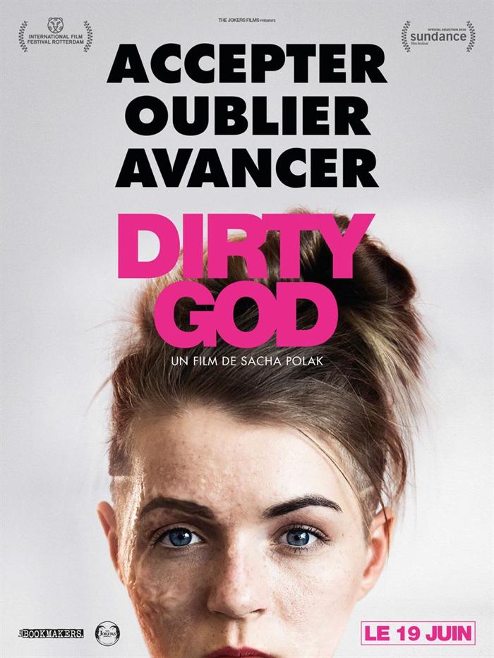 Affiche de Dirty God de Sacha Polak, sur lequel on découvre le visage brûlé, de face, de l'héroïne incarnée par Vicky Knight.